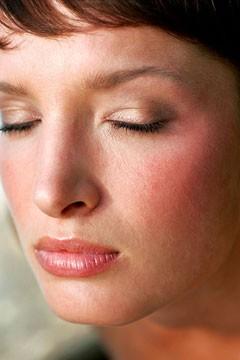 remedios caseros naturales para la rosacea